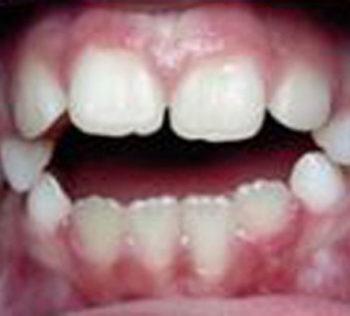 Logopedie & Tandheelkunde